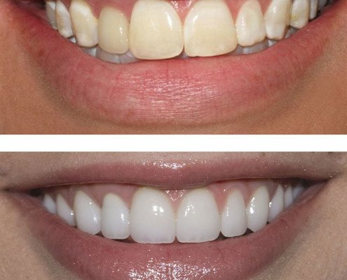 Teeth whitening oakville
