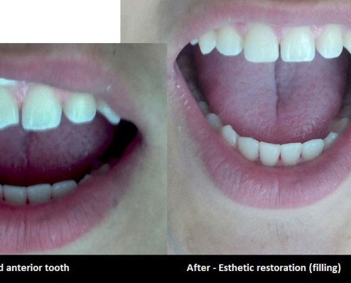 chipped tooth oakville
