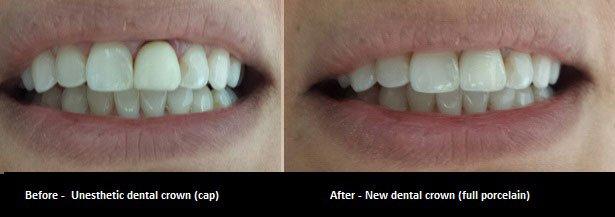 Dental crown oakville