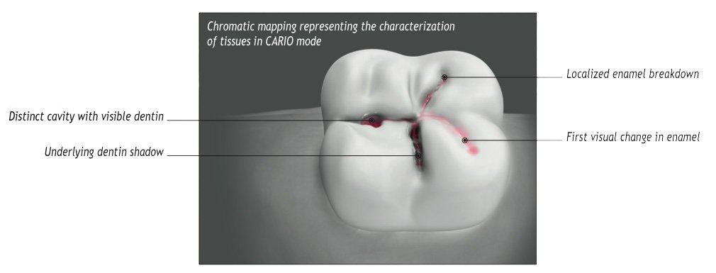 enhanced diagnostics