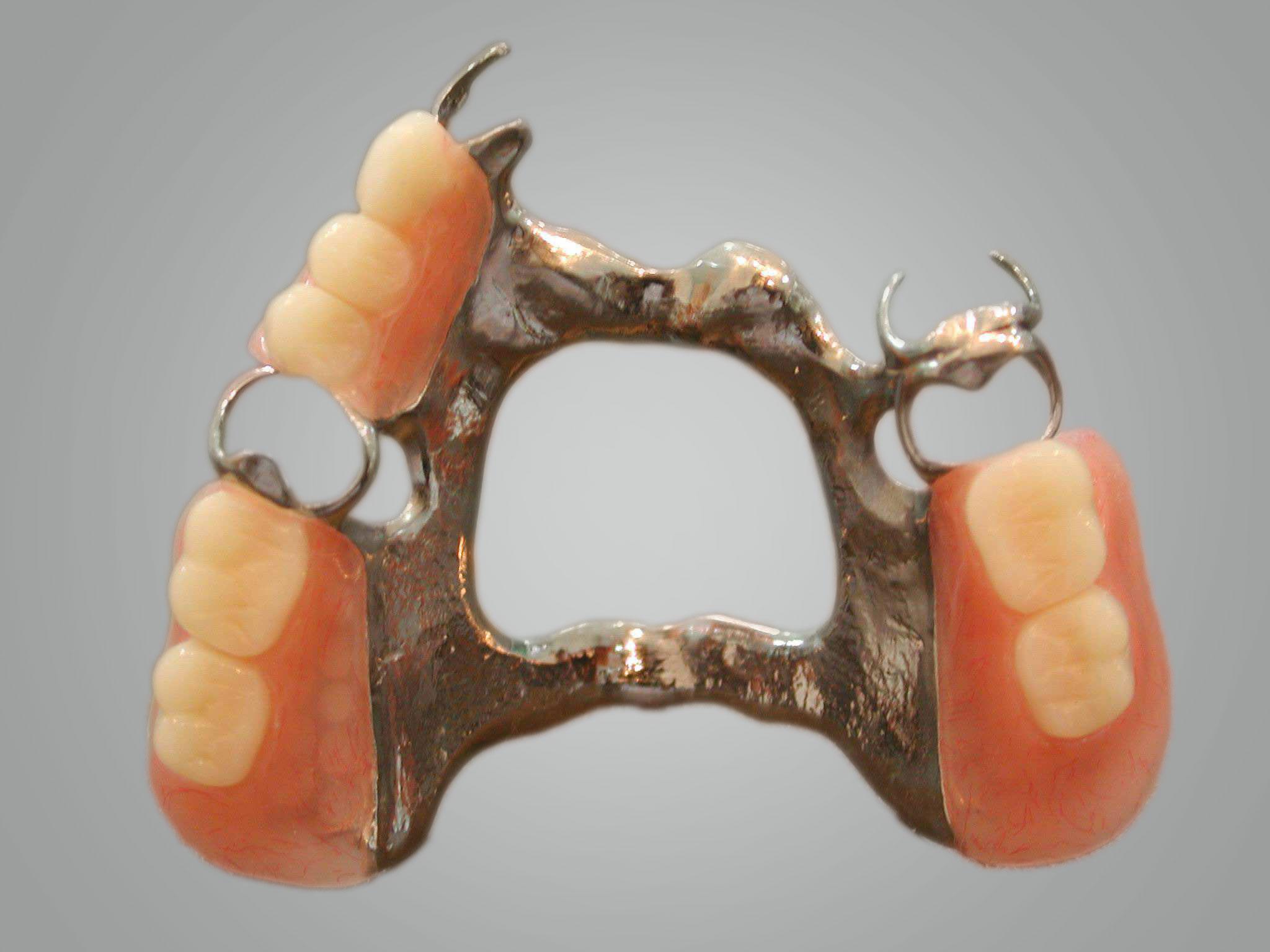 cast metal denture