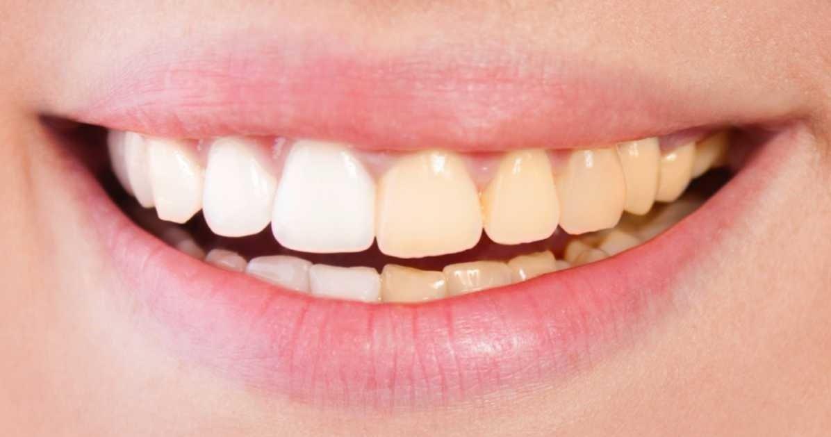 teeth whitening oakville